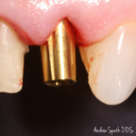 Before & After Dental Bridges & Crowns | Dentist in Newport Beach, CA | Spath Dentistry