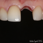 Before & After Dental Implant Surgery | Dentist in Newport Beach, CA | Spath Dentistry