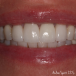 Before & After Dental Implants | Dentist in Newport Beach, CA | Spath Dentistry