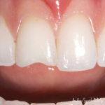 Dental Bonding Before & After | Dentist in Newport Beach, CA | Spath Dentistry