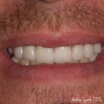 Full Mouth Reconstruction | Dentist in Newport Beach, CA | Spath Dentistry