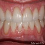 10 Veneers Before & Afters | Cosmetic Dentist in Newport Beach, CA | Spath Dentistry