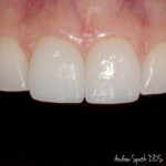 2 Veneers on Incisors Before & Afters | Dentist in Newport Beach, CA | Spath Dentistry