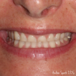 Dental Before & Afters | Dentist in Newport Beach, CA | Spath Dentistry