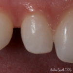 Single Front Tooth Before & Afters | Dentist in Newport Beach, CA | Spath Dentistry