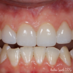 Veneers Case Study Before & After | Dentist in Newport Beach, CA | Spath Dentistry