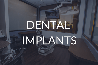 Dental Implants in Newport Beach CA