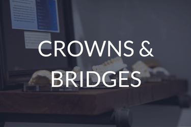 Crowns & Bridges in Newport Beach CA