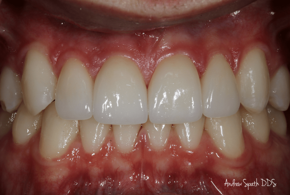 After Image - Dental Bonding & Veneers Case Study image 5 | Newport Beach Dentist | Andrew Spath DDS