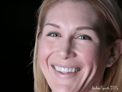 andrea-before-afters-dentist-in-newport-beach-ca-spath-dentistry-1