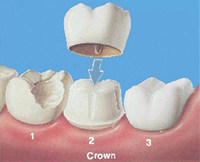crowns-newport-beach-dentist