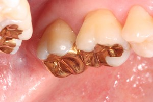 gold-dental-work-in-newport-beach-ca