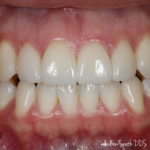 Invisalign Before & Afters | Dentist in Newport Beach, CA | Spath Dentistry