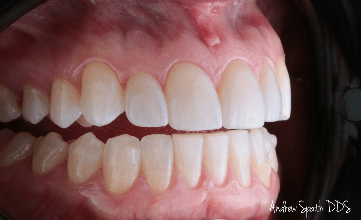 invisalign-case-study-_-cosmetic-dentistry-2