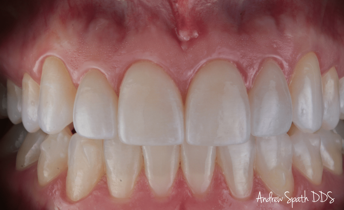 invisalign-case-study-_-cosmetic-dentistry-3