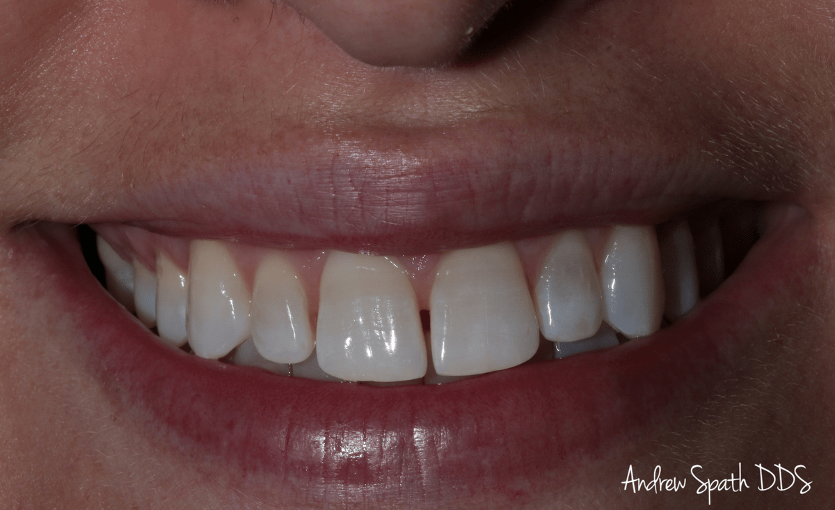 invisalign-case-study-_-cosmetic-dentistry